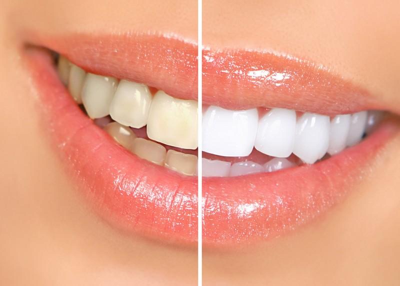 Teeth Whitening  Cincinnati, OH